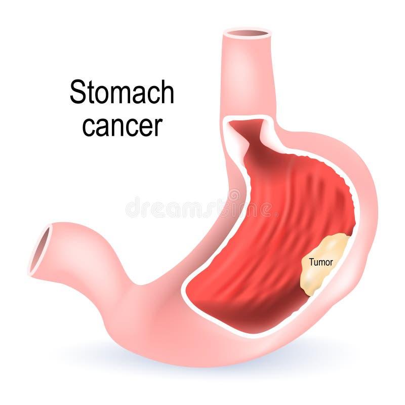 Câncer de estômago Seção transversal do estômago ilustração stock