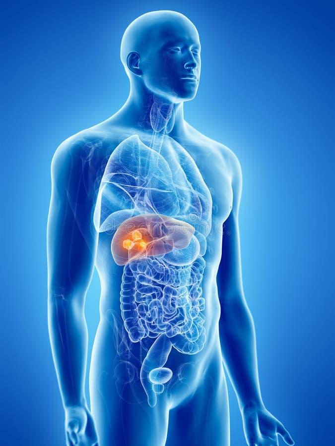 Câncer do fígado ilustração do vetor