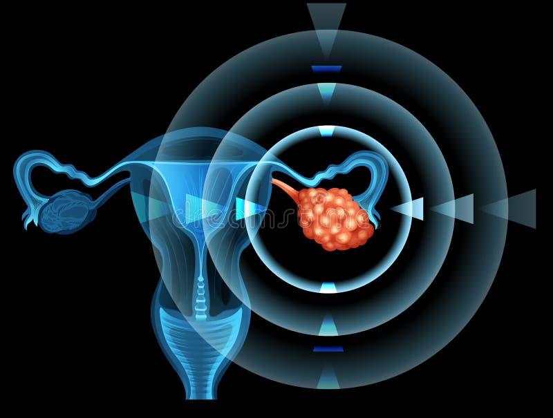 Câncer no ovário da mulher ilustração do vetor
