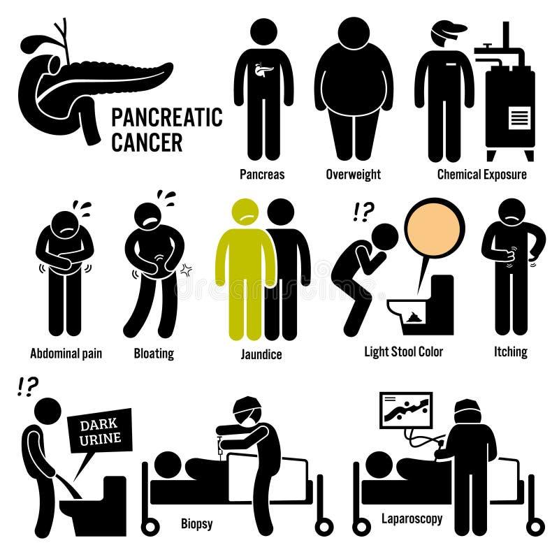 Câncer pancreático Clipart do pâncreas ilustração stock