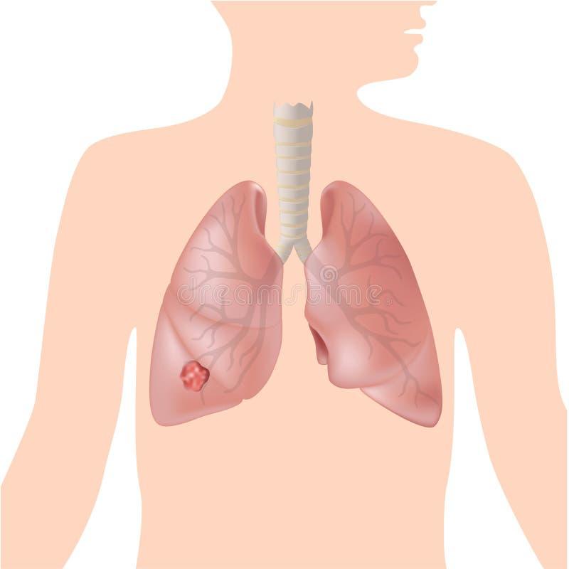 Câncer pulmonar ilustração stock