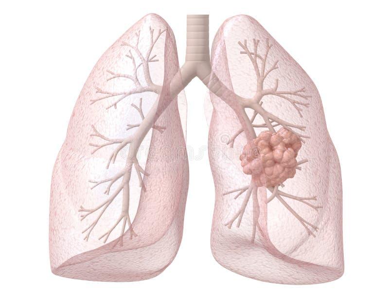 Câncer pulmonar ilustração royalty free