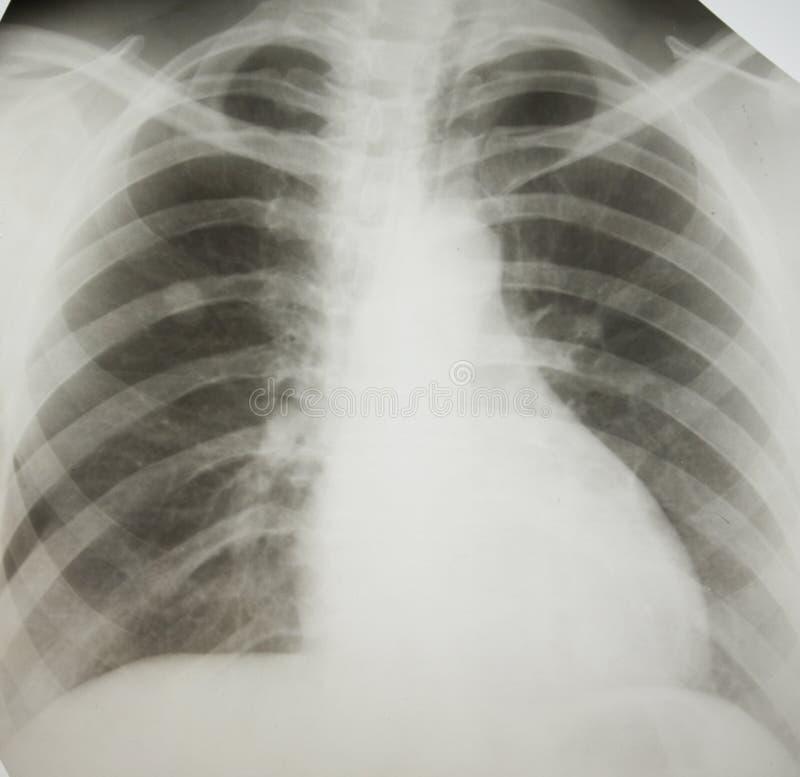 Câncer pulmonar. fotografia de stock royalty free