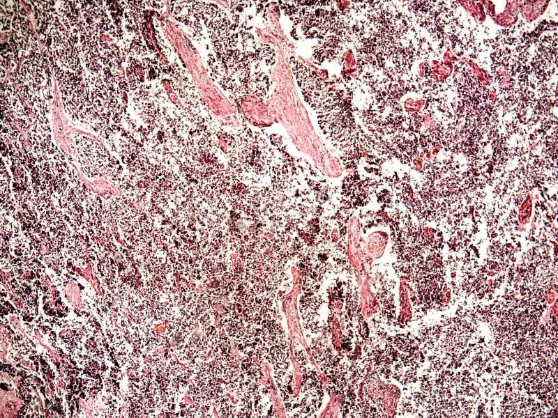 câncer pulmonar da Pequeno-pilha de um ser humano foto de stock