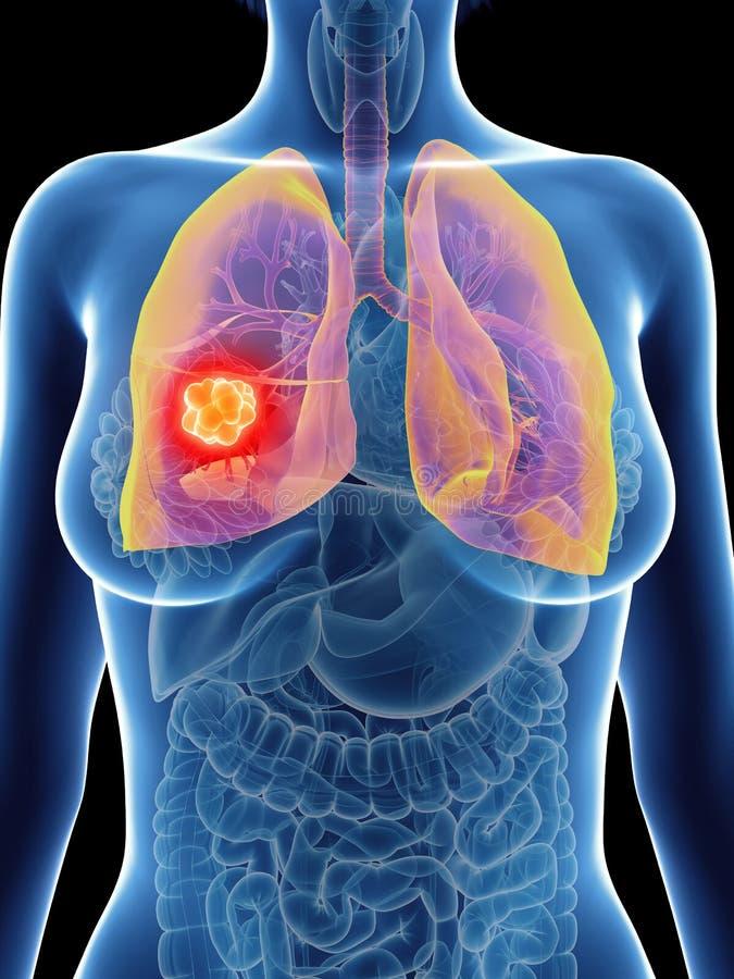 Câncer pulmonar de uma mulher ilustração do vetor
