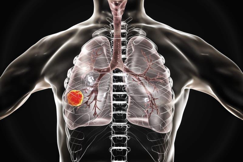 Câncer pulmonar, ilustração ilustração royalty free
