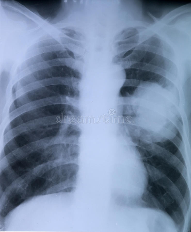 Câncer pulmonar: Imagem do raio X da caixa foto de stock