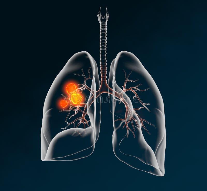 Câncer pulmonar, medicamente ilustração 3D no fundo escuro ilustração royalty free