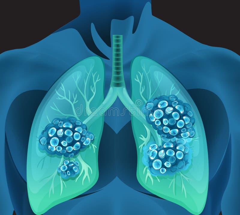 Câncer pulmonar no corpo humano ilustração stock