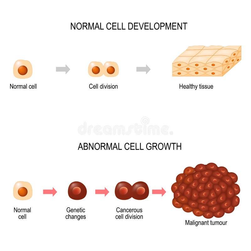 Célula cancerosa ejemplo que muestra el desarrollo de la enfermedad del cáncer ilustración del vector