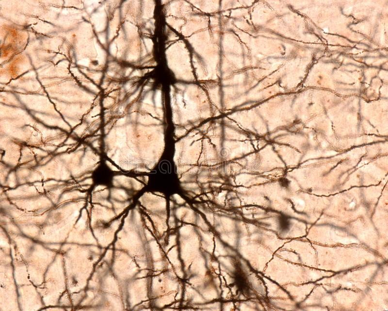 Célula piramidal Corteza cerebral foto de archivo libre de regalías