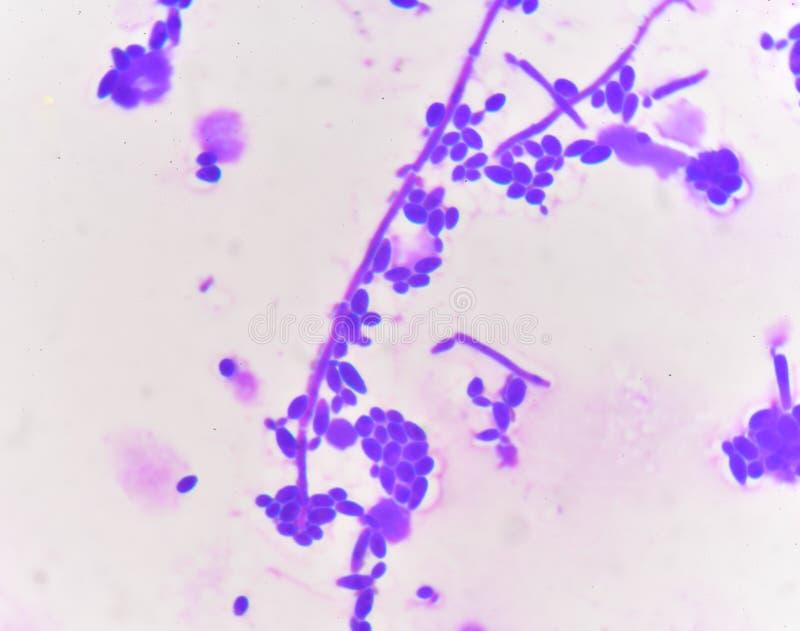 Células de levadura de florecimiento con pseudohyphae imagen de archivo
