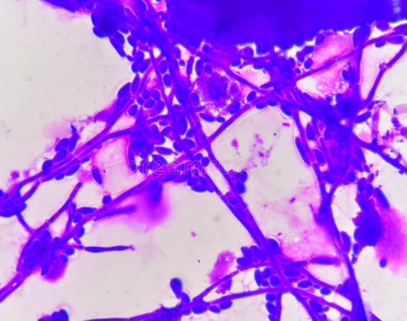 Células de levadura de florecimiento con pseudohyphae imágenes de archivo libres de regalías