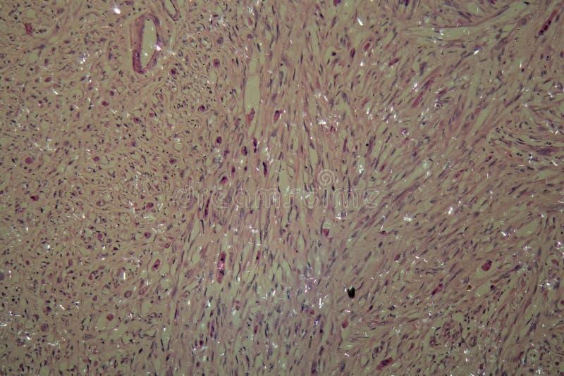 Células del cáncer testicular foto de archivo libre de regalías