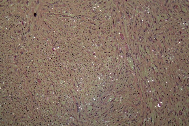 Células del cáncer testicular fotos de archivo libres de regalías