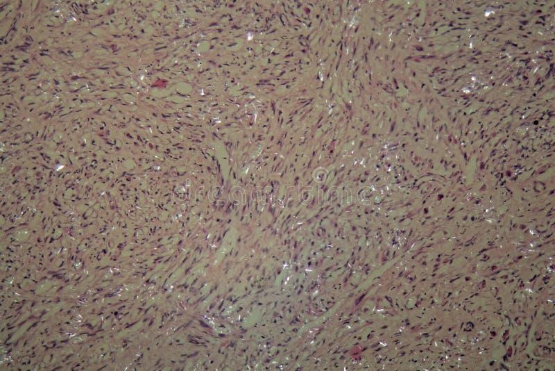 Células del cáncer testicular imagen de archivo