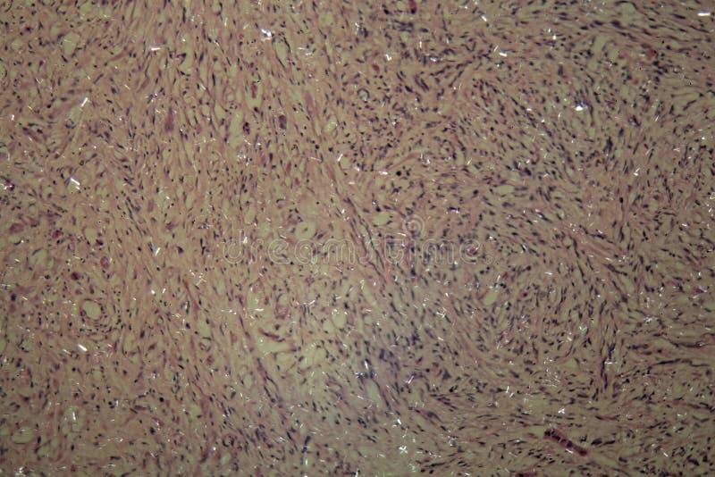 Células del cáncer testicular imágenes de archivo libres de regalías