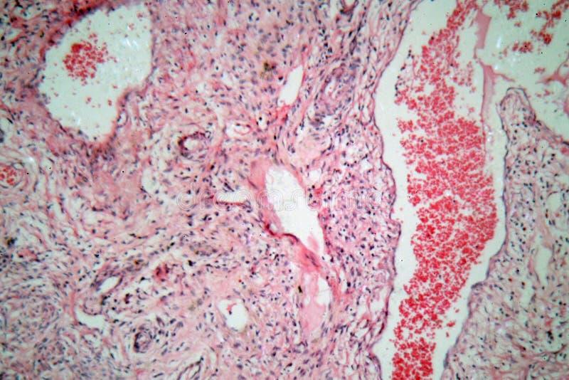 Células del tejido de una cerviz humana con las células cancerosas cervicales foto de archivo libre de regalías