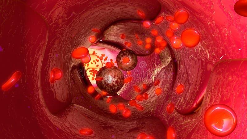 Células del tumor en vasos sanguíneos stock de ilustración
