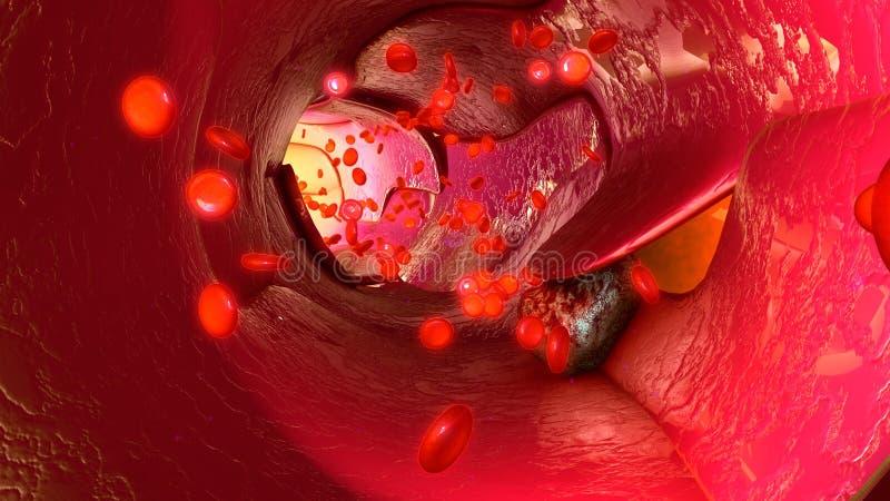 Células del tumor en vasos sanguíneos ilustración del vector