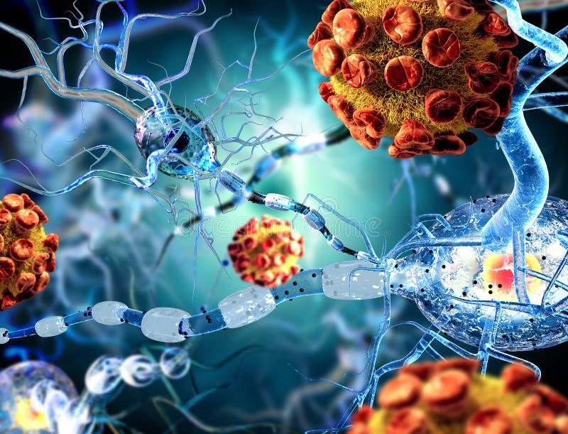 Células nerviosas y virus, concepto para las enfermedades neurológicas, tumores y neurocirugía stock de ilustración