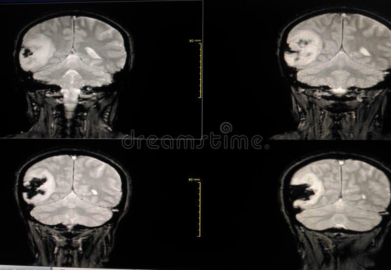 Cérebro de MRI fotografia de stock