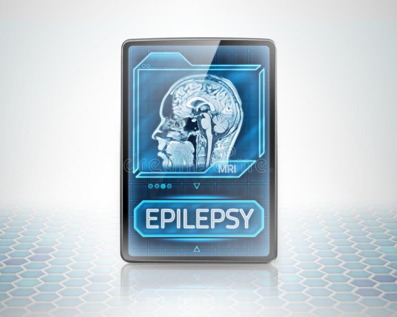 Cérebro epiléptico ilustração royalty free