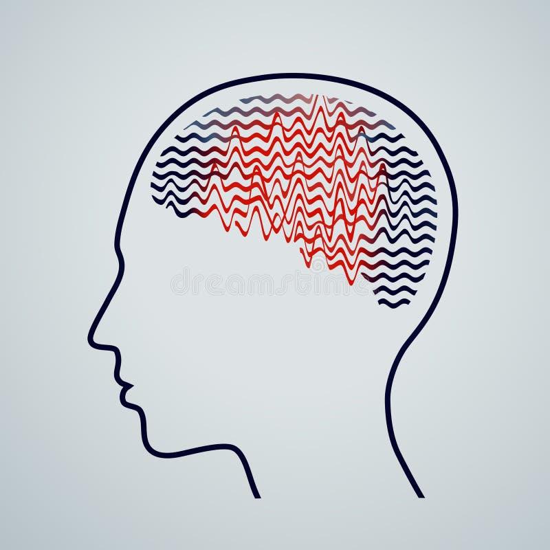 Cérebro humano com atividade da epilepsia, ilustração do vetor ilustração do vetor