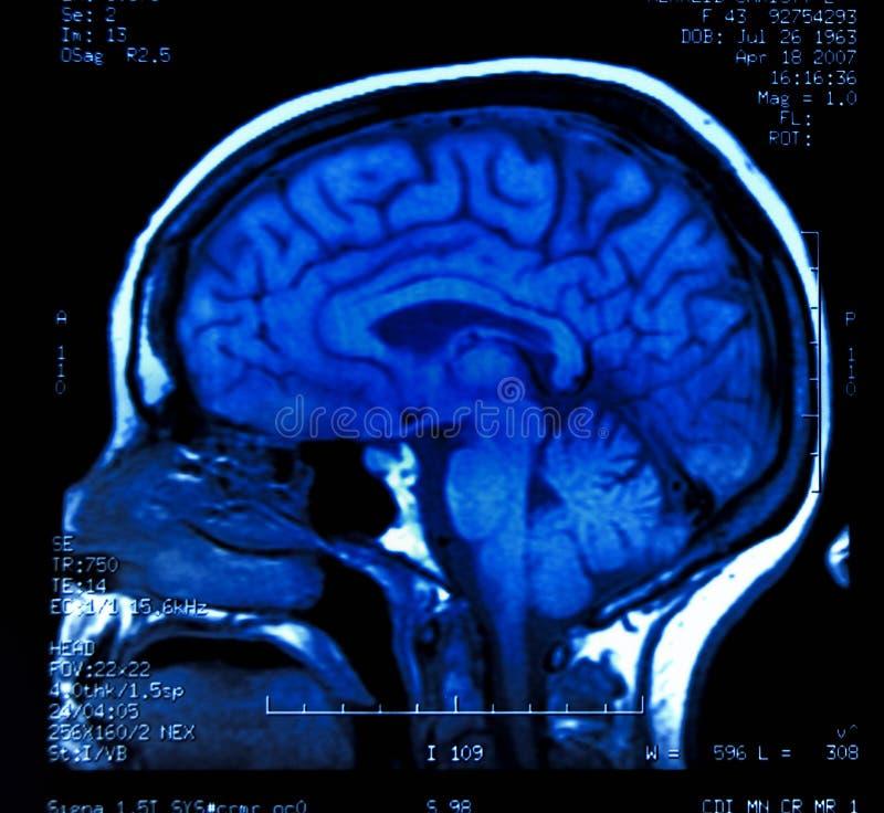 Cérebro MRI fotos de stock royalty free
