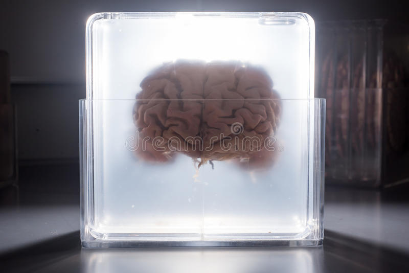 Cérebro que flutua em um frasco de incandescência fotos de stock royalty free