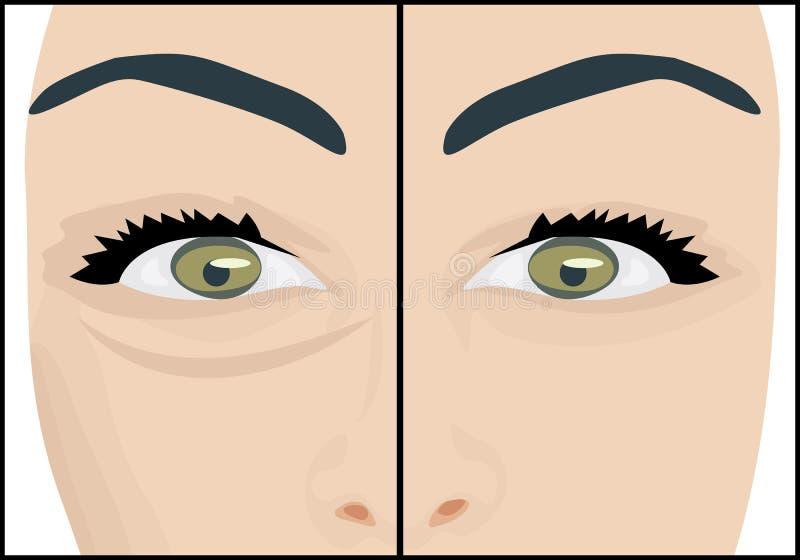 Círculos escuros sob os olhos a remover antes e depois ilustração stock