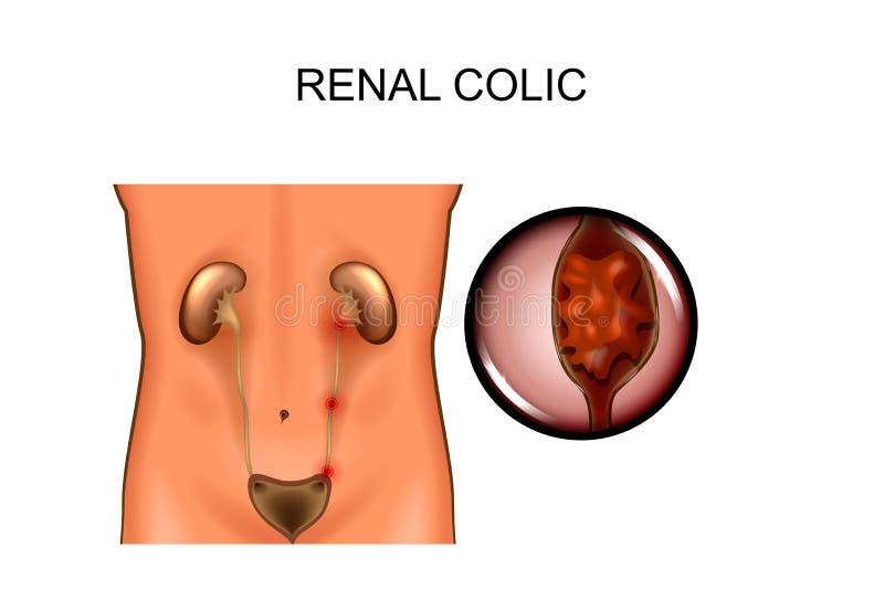 Cólico renal localizaciones stock de ilustración