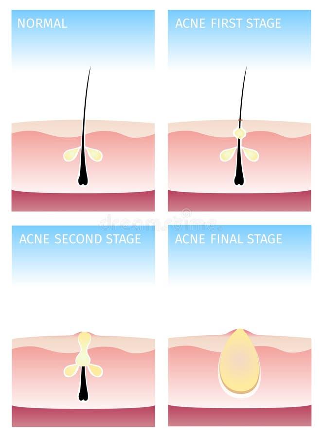 Cómo sucede el acné etapas del acné, libre illustration