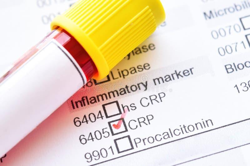 C易反应的蛋白质测试的血样管 免版税库存照片