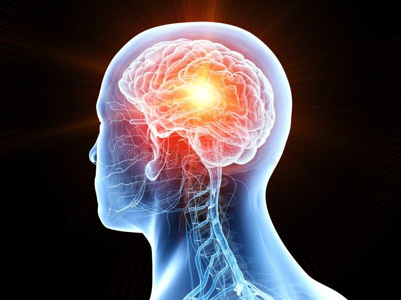 C?ncer cerebral humano ilustração do vetor