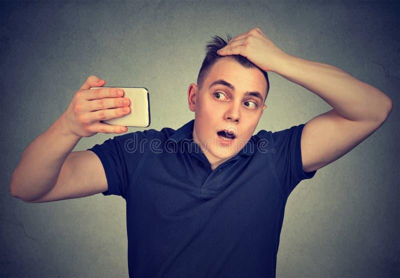Cabeça chocada do sentimento do homem, surpreendida é cabelo perdedor imagens de stock