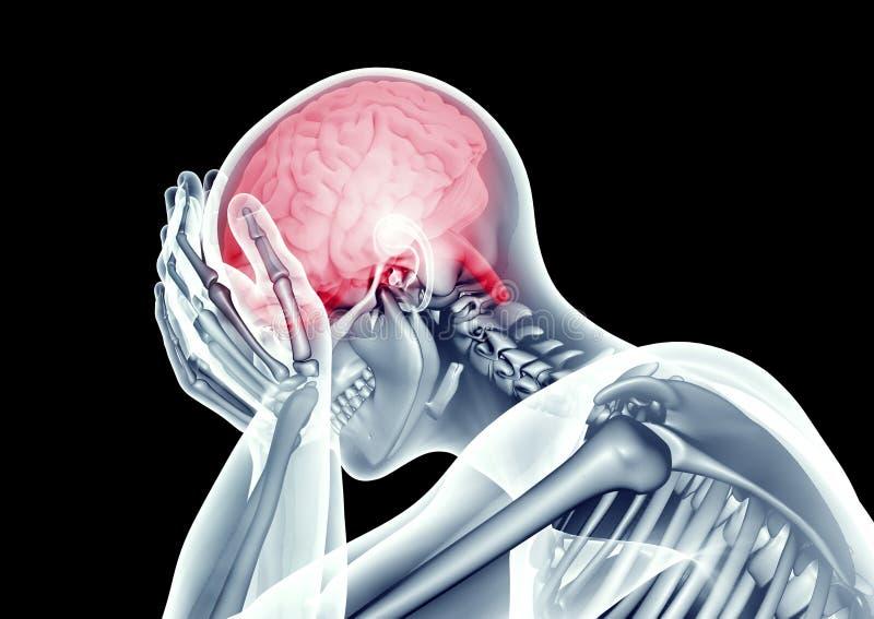 cabeça humana da imagem do raio X com dor ilustração royalty free