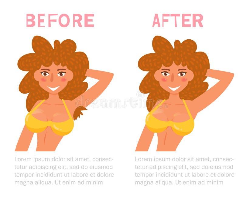 Cabelo de axila antes e depois Vetor da remoção do laser cartoon Arte isolada no fundo branco liso ilustração royalty free