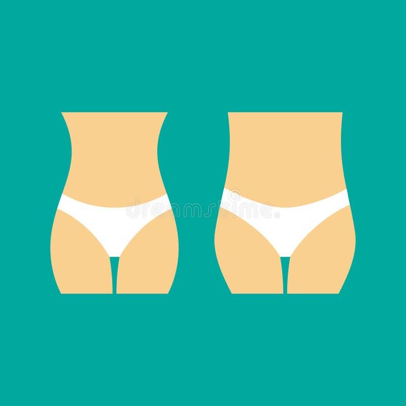 Caderas gordas femeninas La mujer basa diseño plano Antes y después Ejemplo de las nalgas de la mujer Programa de tratamiento de  libre illustration