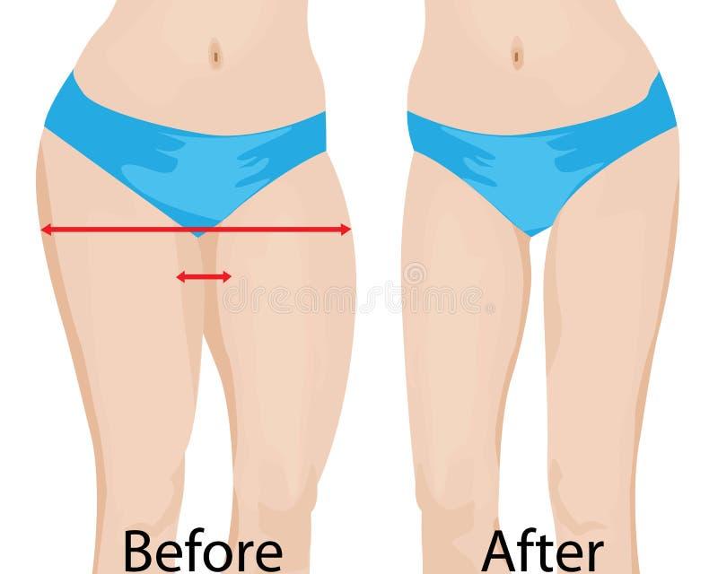 Caderas gordas y delgadas del ` de las muchachas Antes y después ilustración del vector
