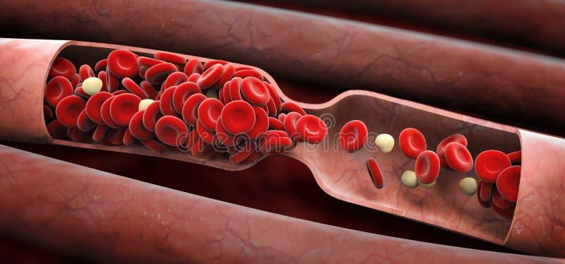 Caillot sanguin photo stock