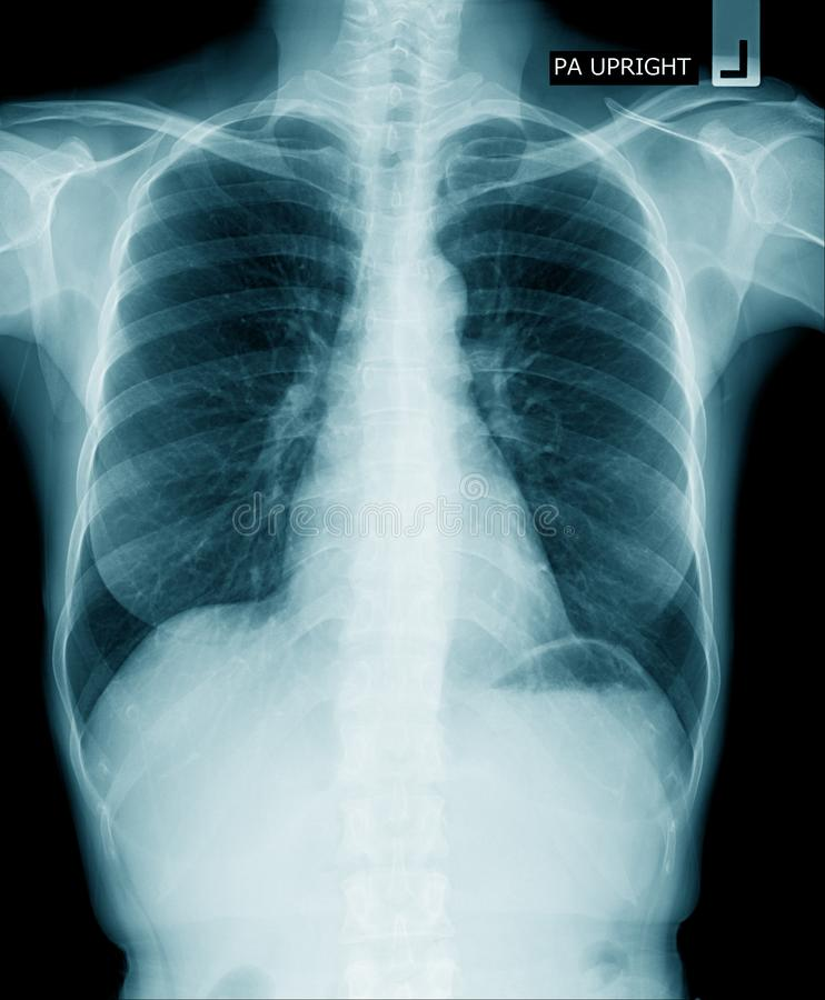 Caixa do raio X fotos de stock royalty free