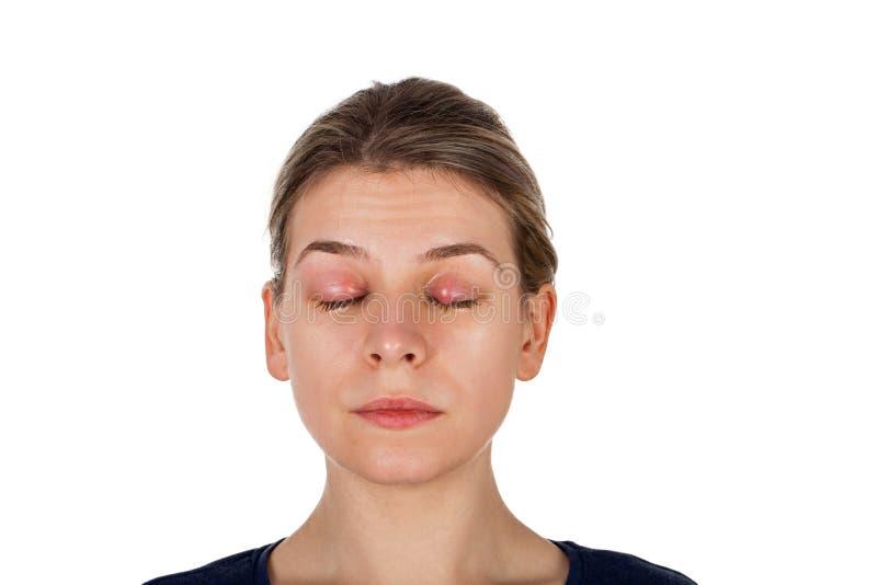 Calazio - infezione della palpebra fotografia stock