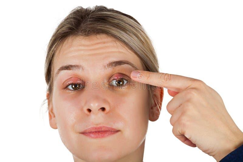 Calazio - infezione della palpebra fotografie stock