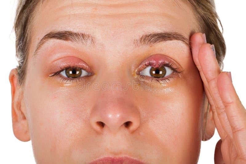 Calazio - infezione della palpebra fotografia stock libera da diritti