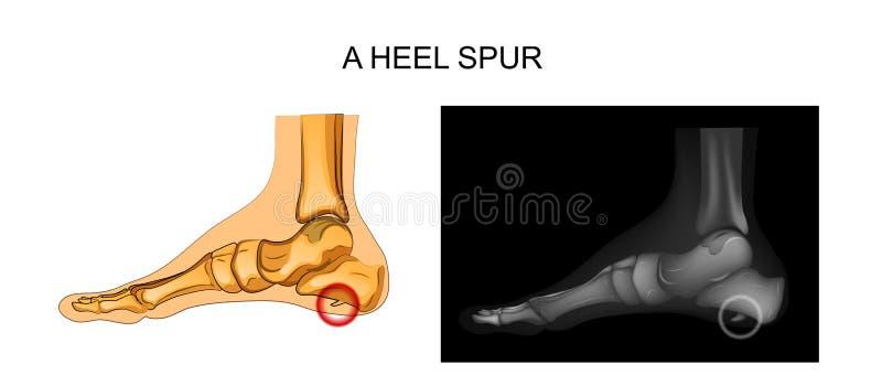 Calcaneal шпора orthopedics бесплатная иллюстрация
