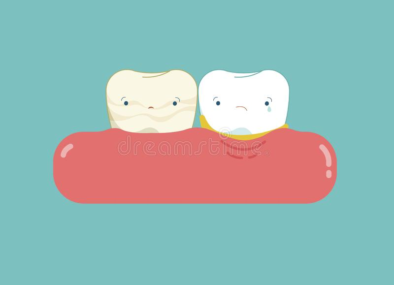 Calculus teeth cartoon, dental concept.  vector illustration