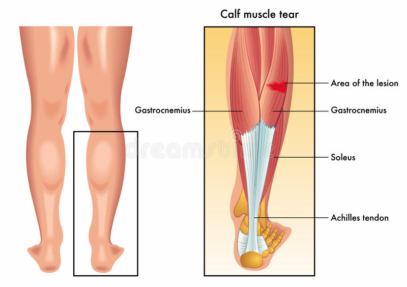 Calf muscle tear royalty free illustration