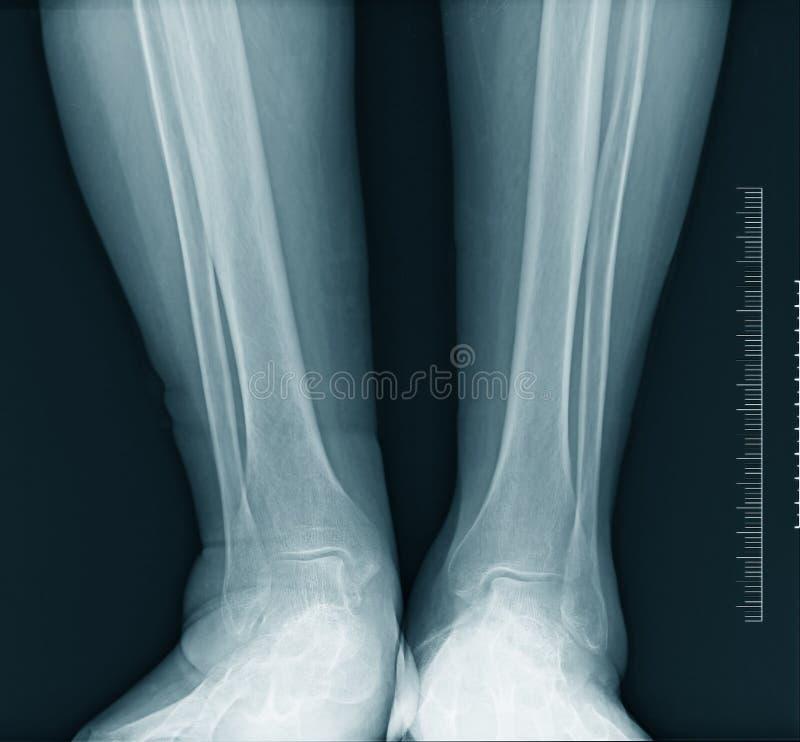 Calf x-ray stock photos