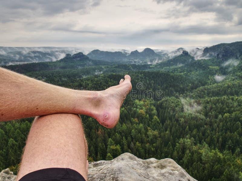 Callo sangriento grande en el man& x27; talón de s El primer de los pies del hombre se relaja imagen de archivo